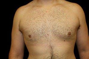 Gynecomastia Gallery - Patient 39248002 - Image 2