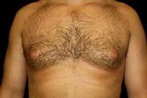 Gynecomastia Gallery - Patient 39248138 - Image 1