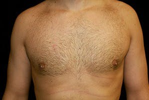Gynecomastia Gallery - Patient 39248138 - Image 2