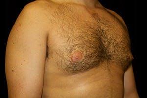 Gynecomastia Gallery - Patient 39248138 - Image 3