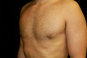 Gynecomastia Gallery - Patient 39248138 - Image 6