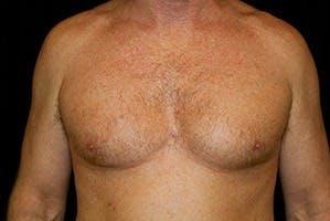 Gynecomastia Gallery - Patient 39248277 - Image 1
