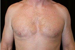 Gynecomastia Gallery - Patient 39248277 - Image 2
