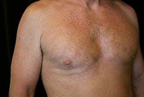 Gynecomastia Gallery - Patient 39248277 - Image 4