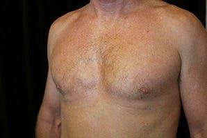 Gynecomastia Gallery - Patient 39248277 - Image 6