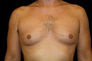 Gynecomastia Gallery - Patient 39248279 - Image 1