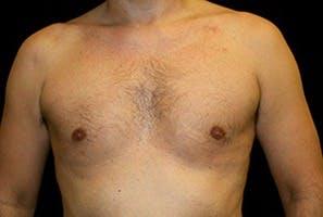 Gynecomastia Gallery - Patient 39248279 - Image 2