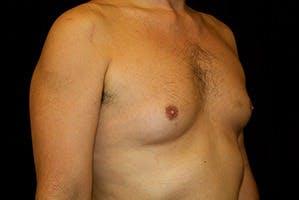 Gynecomastia Gallery - Patient 39248279 - Image 3
