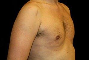 Gynecomastia Gallery - Patient 39248279 - Image 4