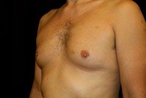 Gynecomastia Gallery - Patient 39248279 - Image 5