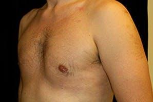 Gynecomastia Gallery - Patient 39248279 - Image 6