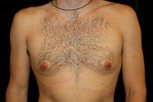 Gynecomastia Gallery - Patient 39248281 - Image 1