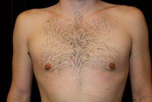 Gynecomastia Gallery - Patient 39248281 - Image 2