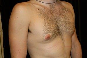 Gynecomastia Gallery - Patient 39248281 - Image 3