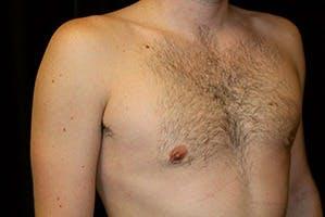 Gynecomastia Gallery - Patient 39248281 - Image 4