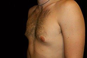 Gynecomastia Gallery - Patient 39248281 - Image 5
