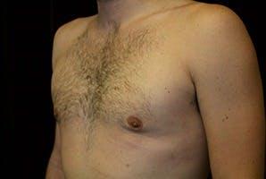 Gynecomastia Gallery - Patient 39248281 - Image 6