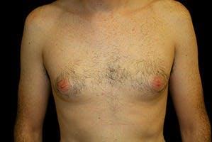 Gynecomastia Gallery - Patient 39248283 - Image 1