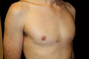 Gynecomastia Gallery - Patient 39248283 - Image 4