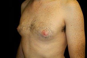 Gynecomastia Gallery - Patient 39248283 - Image 5