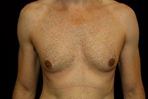 Gynecomastia Gallery - Patient 39248284 - Image 1