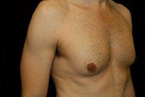 Gynecomastia Gallery - Patient 39248284 - Image 3