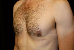 Gynecomastia Gallery - Patient 39248284 - Image 6