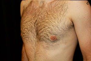 Gynecomastia Gallery - Patient 39248288 - Image 6