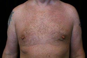 Gynecomastia Gallery - Patient 39248289 - Image 2