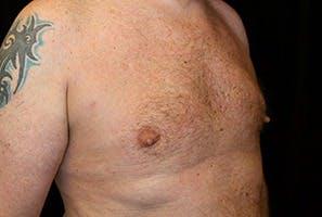 Gynecomastia Gallery - Patient 39248289 - Image 4