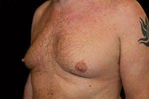 Gynecomastia Gallery - Patient 39248289 - Image 5