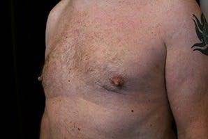 Gynecomastia Gallery - Patient 39248289 - Image 6