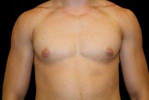 Gynecomastia Gallery - Patient 39248290 - Image 1