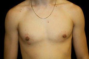 Gynecomastia Gallery - Patient 39248290 - Image 2