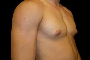 Gynecomastia Gallery - Patient 39248290 - Image 3