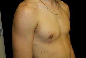 Gynecomastia Gallery - Patient 39248290 - Image 4