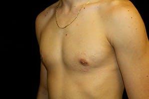 Gynecomastia Gallery - Patient 39248290 - Image 6