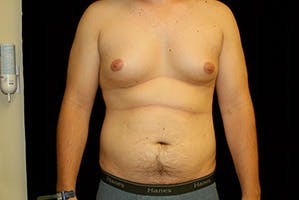 Gynecomastia Gallery - Patient 39248292 - Image 1
