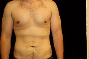 Gynecomastia Gallery - Patient 39248292 - Image 2