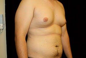 Gynecomastia Gallery - Patient 39248292 - Image 3