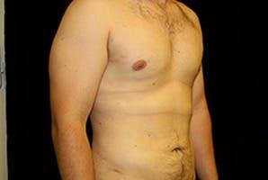 Gynecomastia Gallery - Patient 39248292 - Image 4