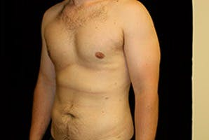 Gynecomastia Gallery - Patient 39248292 - Image 6