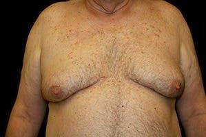 Gynecomastia Gallery - Patient 39248300 - Image 1