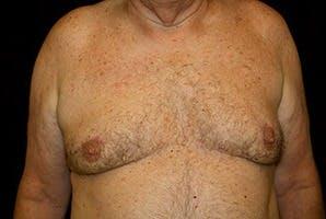 Gynecomastia Gallery - Patient 39248300 - Image 2