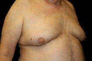 Gynecomastia Gallery - Patient 39248300 - Image 3