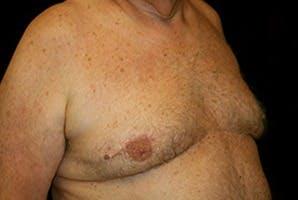 Gynecomastia Gallery - Patient 39248300 - Image 4