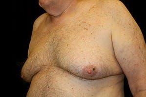 Gynecomastia Gallery - Patient 39248300 - Image 5