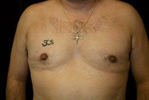 Gynecomastia Gallery - Patient 39248301 - Image 2
