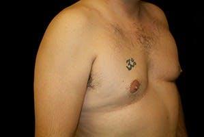 Gynecomastia Gallery - Patient 39248301 - Image 3