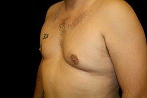 Gynecomastia Gallery - Patient 39248301 - Image 5